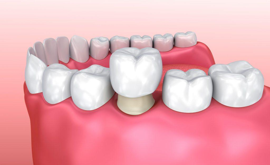 стоматология коронки